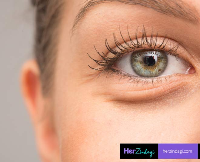 tips for puffy eyes main