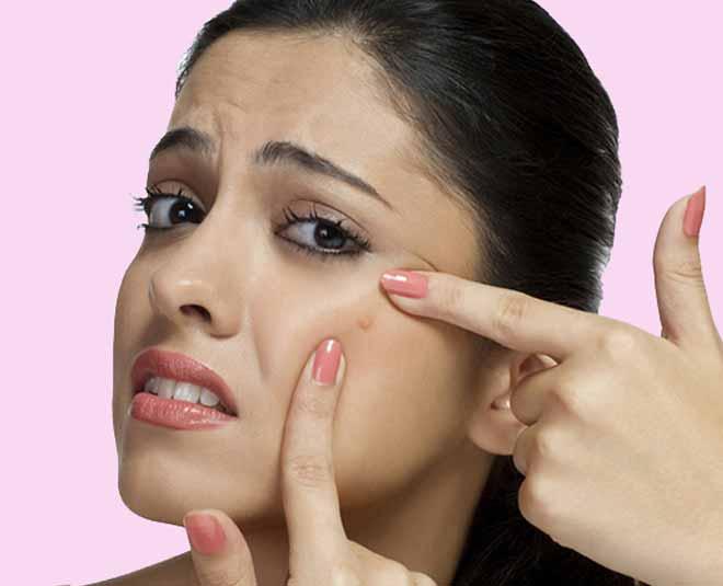 ashwagandha for pimples