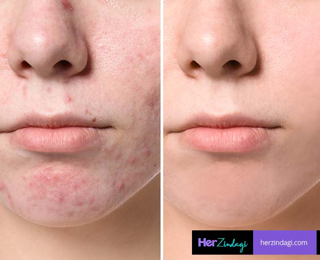 step diy process with neem for acne