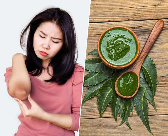 Curry Leaves Mask To Get Rid Of Dark Elbows And Kneessssssss