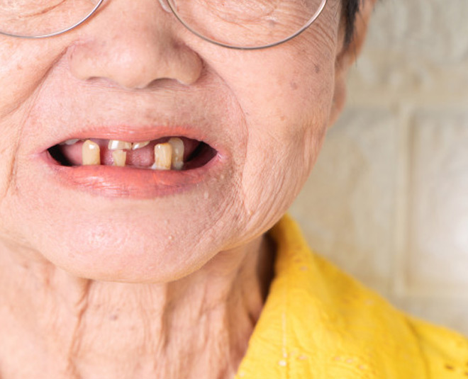 Signs Of Oral Cancer In Women