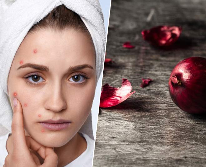 You Can Use Onion Peels To Cure Acne & Pimples