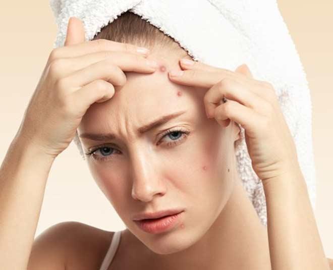 aloe vera powder for pimples inside