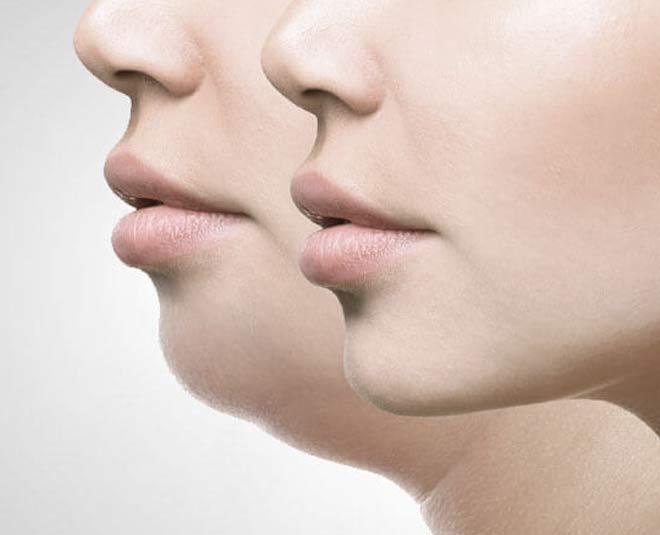 face fat remedy main