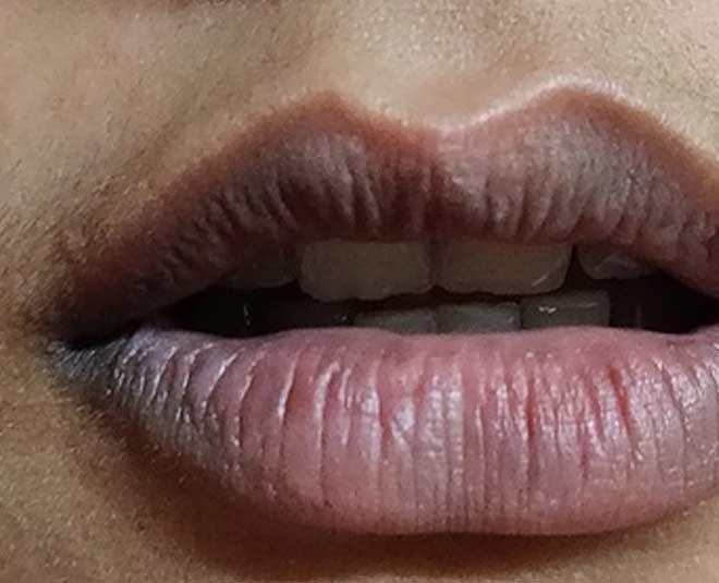 oil remedies lip lightening main