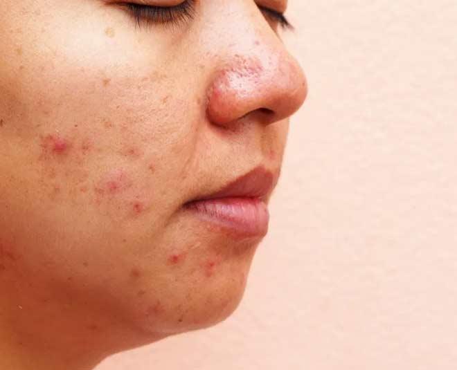 skincare habits to drop m