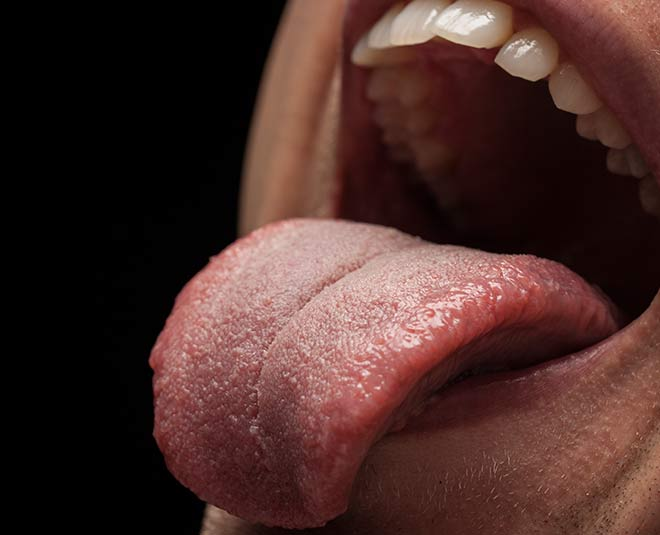 Home Remedies To Remove White Tongue