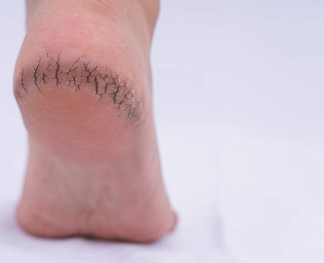 cracked heels causes