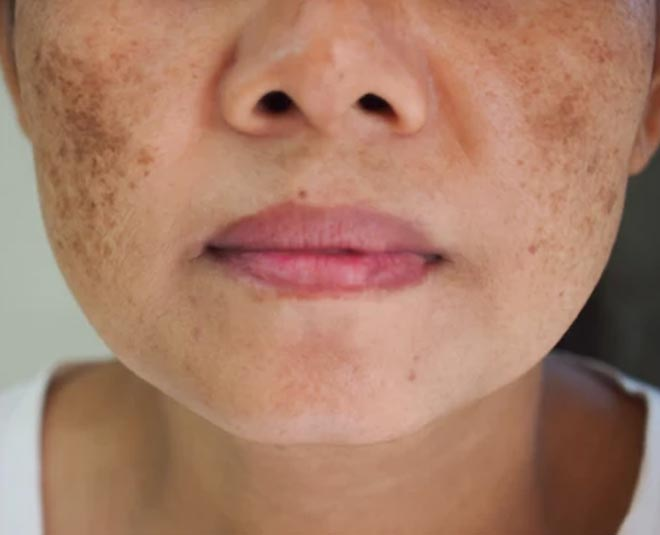 dark spots remedy main