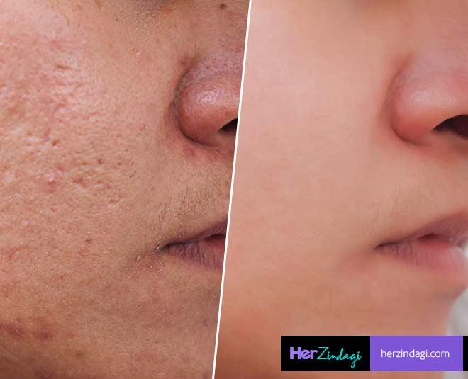 open pores remedy main