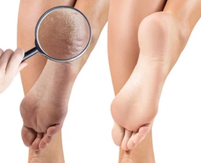 cure for cracked heels skin
