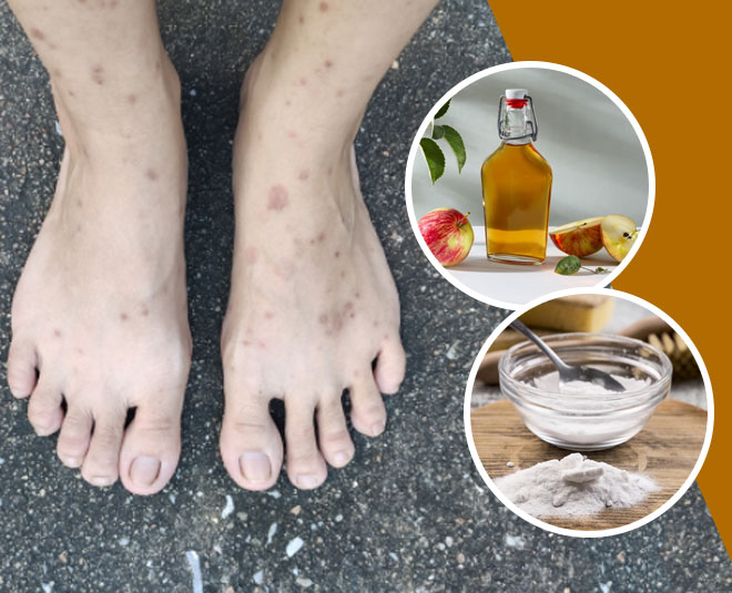 home remedy for scars