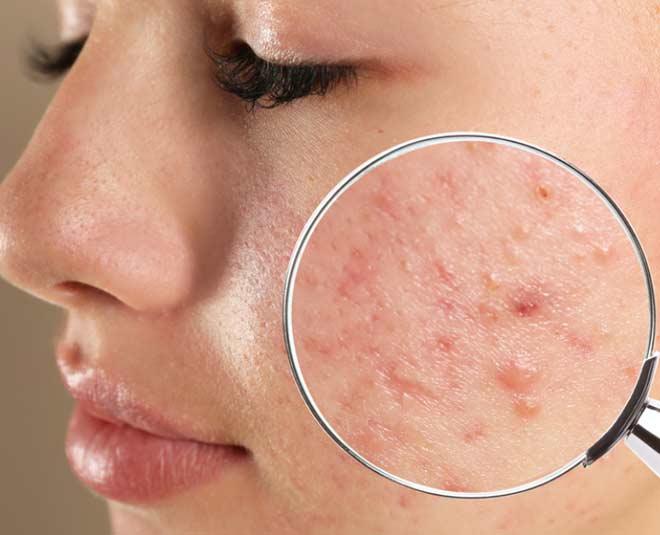 honey  remove  acne