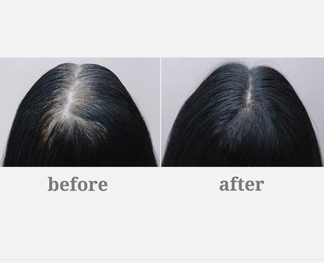 how  to  cure  grey  hair