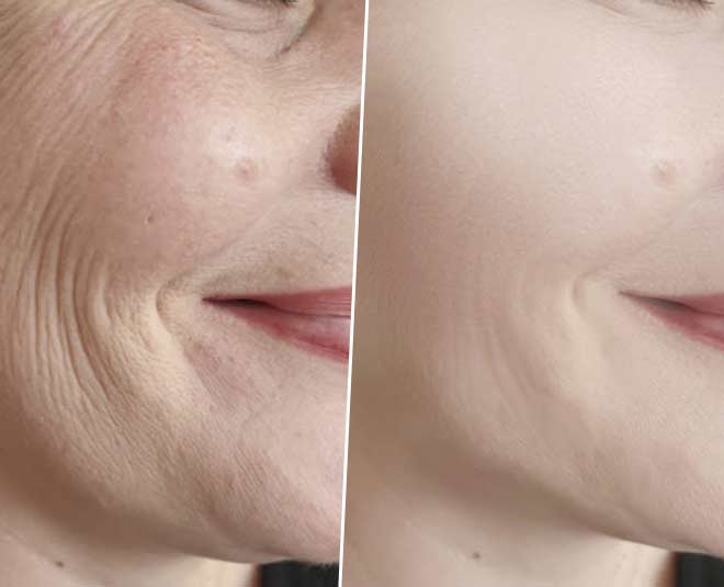 how to remove wrinkles at home main