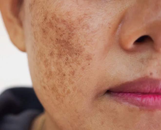 skin problems and liver pigmentaiton