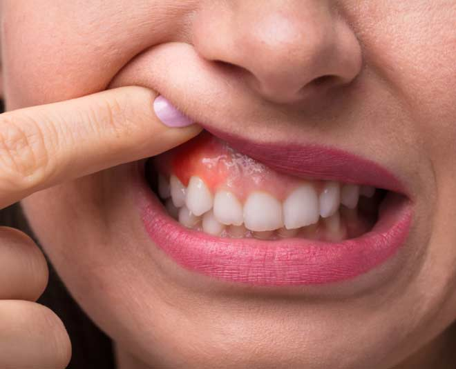 swollen  gums  cure  at  home