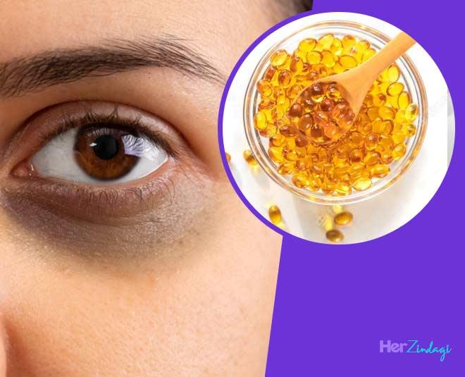 use vitamin e oil for dark circles