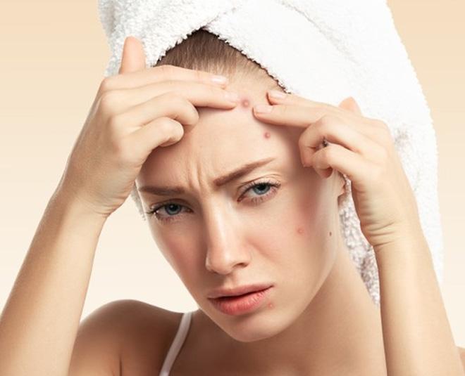 Main fungle acne care tips