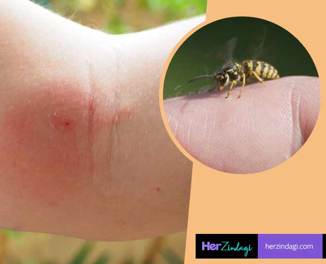 bee stings contain