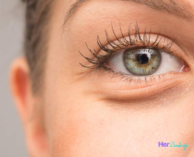 best eye wrinkle treatments