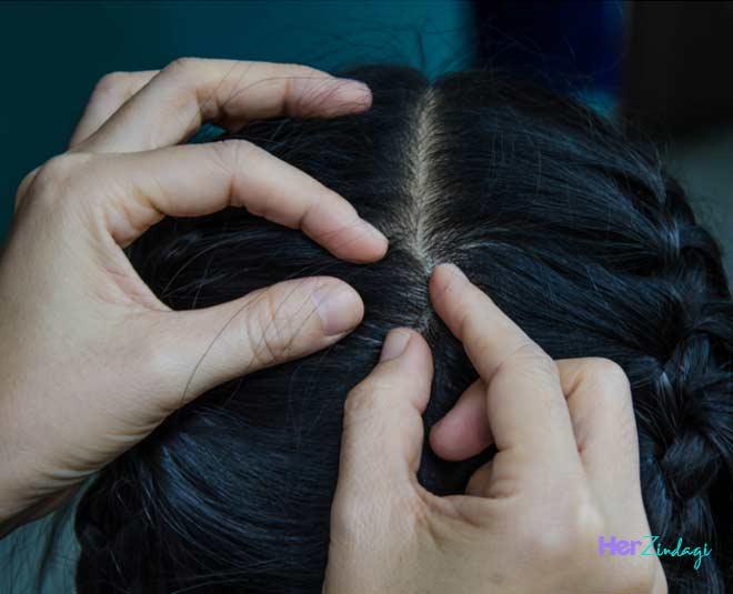 best home  remedies  lice hair