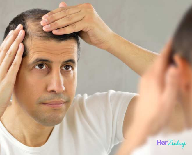 best ways to reduce male hair loss