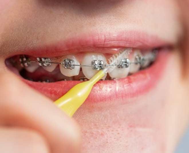 braces kids teeth