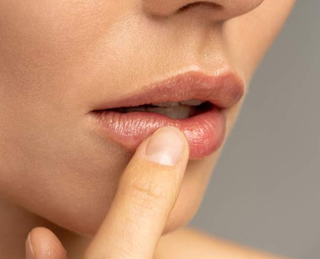chapped lips home remedies
