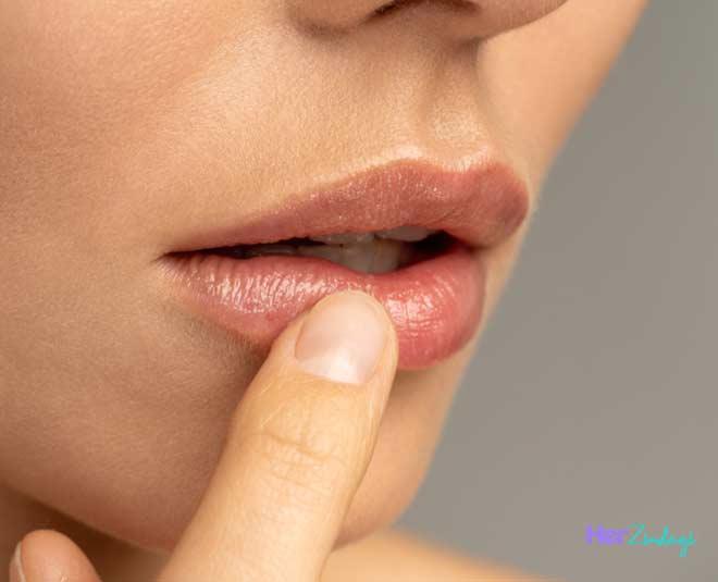 dry lips bleeding
