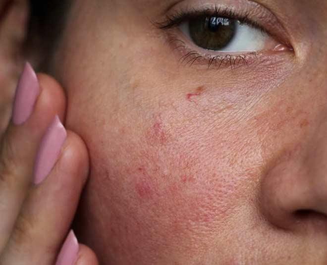 homemade face packs sensitive skin main