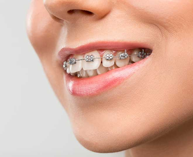 how to take care of dental braces tips