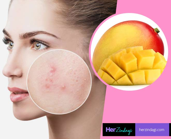mango face pack for pigmentation acne