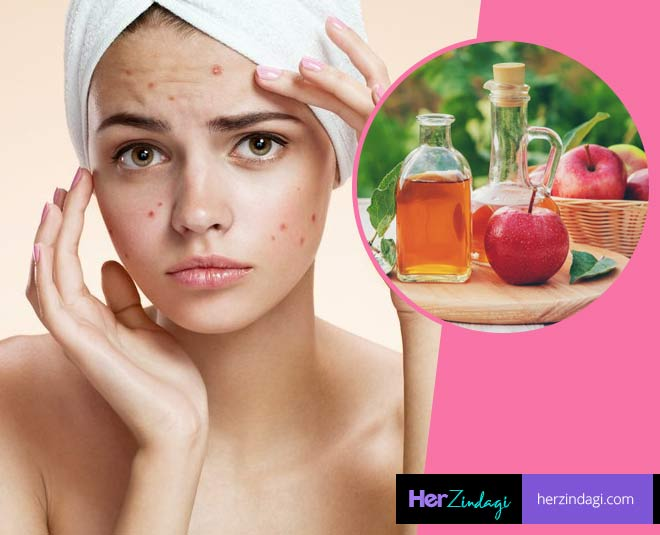 remedies for pimples