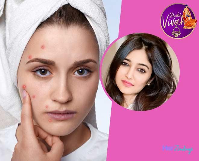 swati bathwal bridal care tips acne scars
