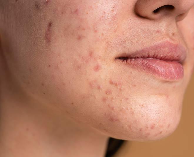 worst skin care advicemain