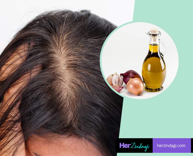 best onion hair oil recipe