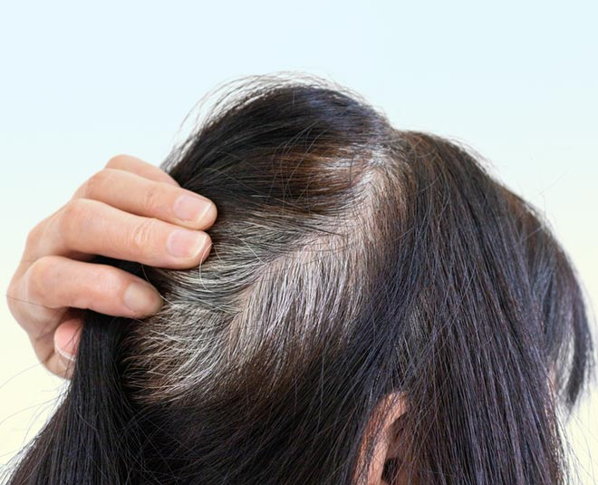 best treatment for grey hair issues
