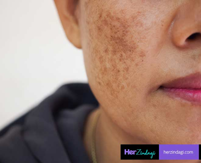 freckles and pigmentation