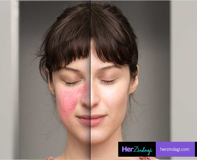 how  to  get  rid  of  oily  skin  open  porse