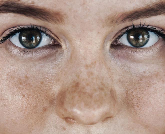 pigmentation around eyes Main