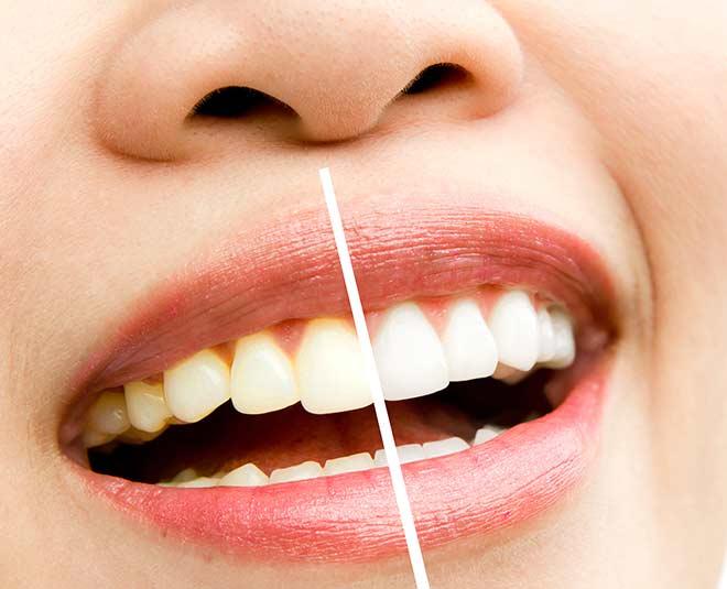 plaque teeth main