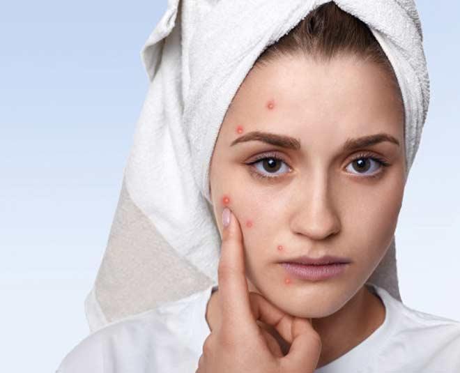 acne remedies main