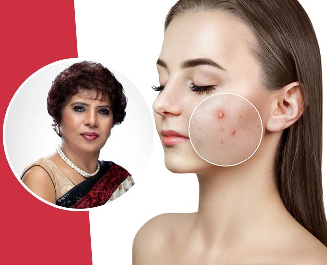 acne removal face pack
