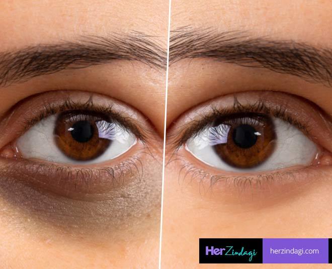 beauty trick dark circles
