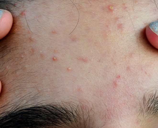 best ways to get smooth skin