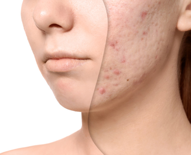home remedies for acne scars in hindi
