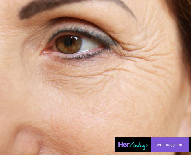 home remedies for crepey skin main