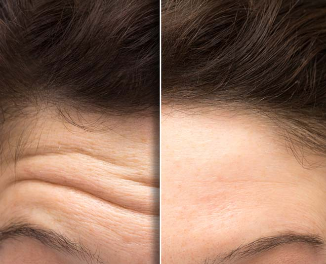 home remedies for forhead lines main