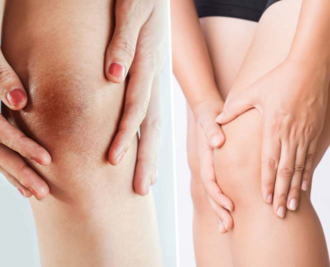home remedies to clean knees